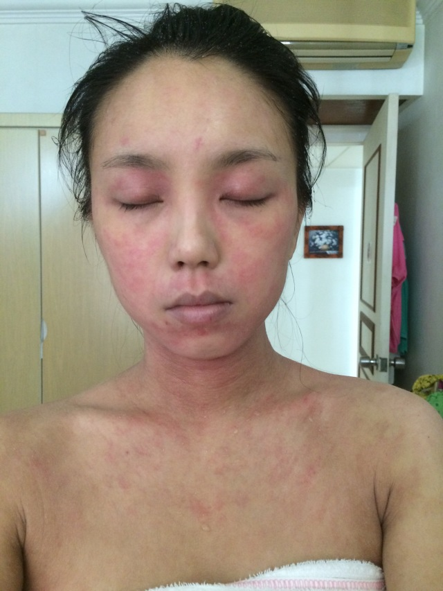 juliana topical steroid withdrawal